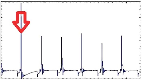 Figure 13: Just by looking at primary voltage, we can quickly identify the problematic/misfiring cylinder.