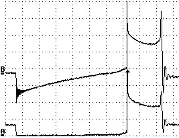 Figure 19: Can you tell the difference between the secondary and primary waveform? Most techs, including myself, cannot.