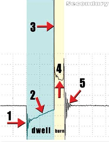 Figure 20: Here we illustrate the steps of a secondary ignition waveform.