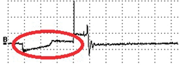 Figure 2. Secondary ignition waveforms tend to show a slight ramping up  of voltage before the spark jumps the gap unlike a primary ignition  waveform.