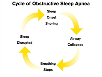 Sleep apnea is a chronic condition that degrades the quality of sleep, resulting in daytime fatigue and drowsiness.