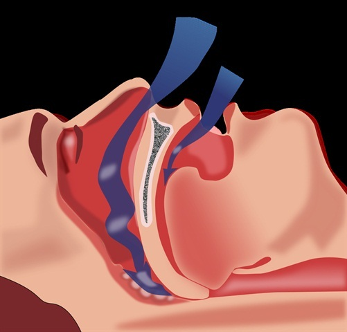 Feds Withdraw Sleep Apnea Pre-Rule